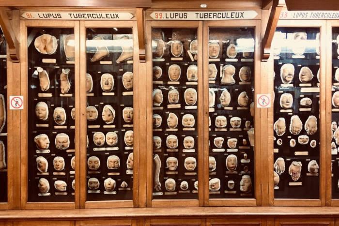 Musée des moulages de l'hôpital Saint-Louis